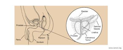 penyebab pencegahan pengobatan kanker prostat