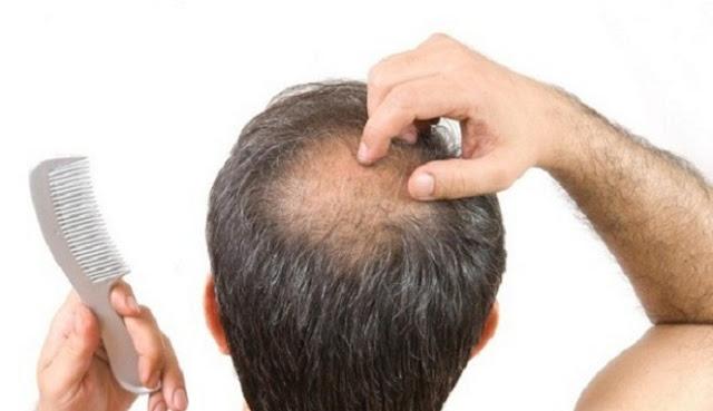 Penumbuh Rambut, Penumbuh Rambut Alami, Obat Penumbuh Rambut