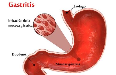 Hasil gambar untuk gastritis