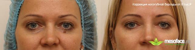 Коррекция носогубных складок Фото до и после Цена 8 тыс.рублей