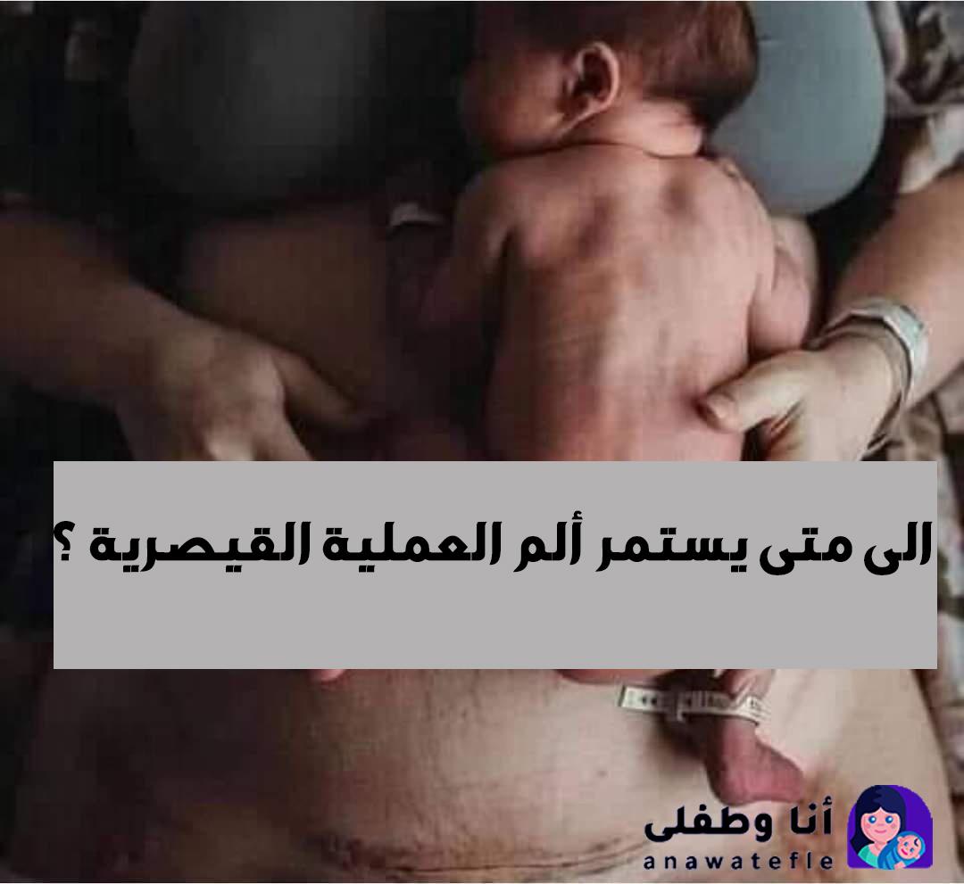 الى متى يستمر الم الولادة القيصرية