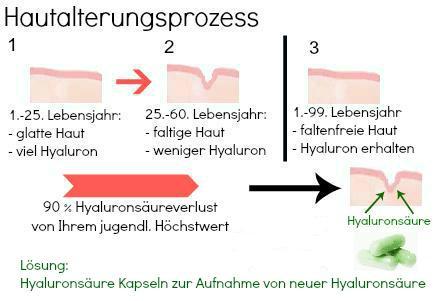 Hyaluronsäure Kapseln Wirkung