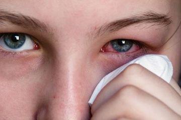 Cara Ampuh Memutihkan Mata Merah