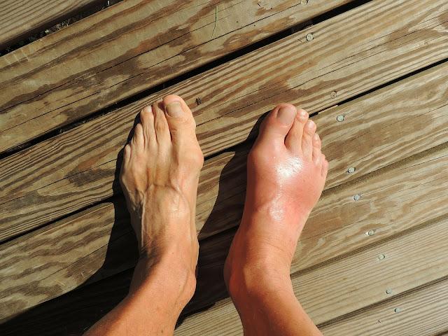 علاج مرض النقرس نهائيا و أهم الوصفات الطبيعية التى تساعد فى علاج النقرس