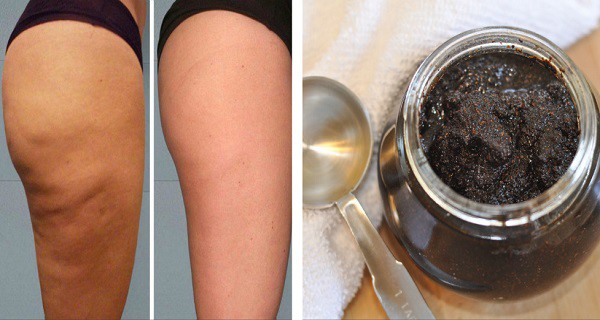 Cellulite and coffe