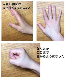 側副靭帯損傷と掌側板損傷のリハビリ中の指