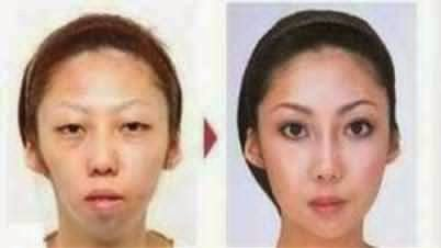 Before and After Photo who allegedly the wife of Jian Feng