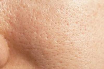Memiliki pori pori wajah yang lebar atau terbuka sanggup berkontribusi untuk problem sepert Tips Alami Mengecilkan Pori - Pori Kulit Terbuka