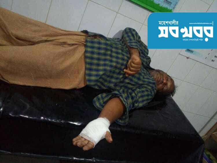 সন্ত্রাসী হামলায় মহেশখালীর তিন বনকর্মী আহত ::