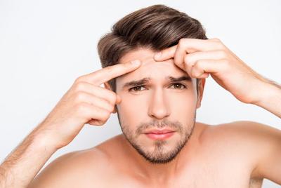 Penyebab Jerawat Pada Pria dan Cara untuk Mengatasinya