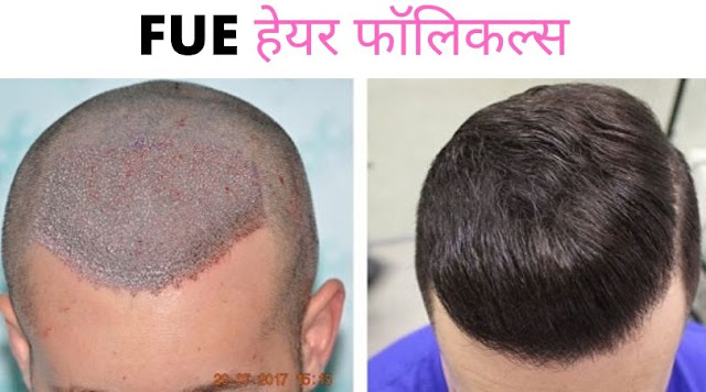 FUE HAIR FOLLICLES