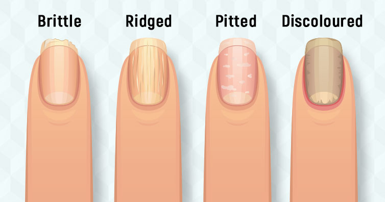 8 Health Problems That Your Nails Reveal