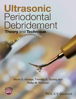 Ultrasonic Periodontal Debridement