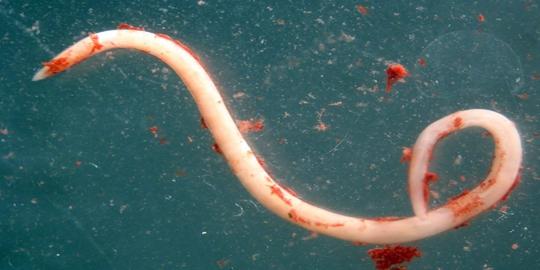 Jenis Jenis Lemak dan Fungsinya bagi Tubuh