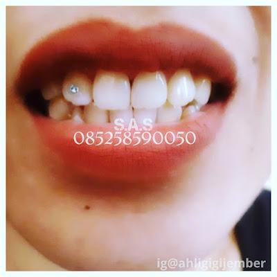 Pasang permata gigi fashion gigi diamond gigi cantik