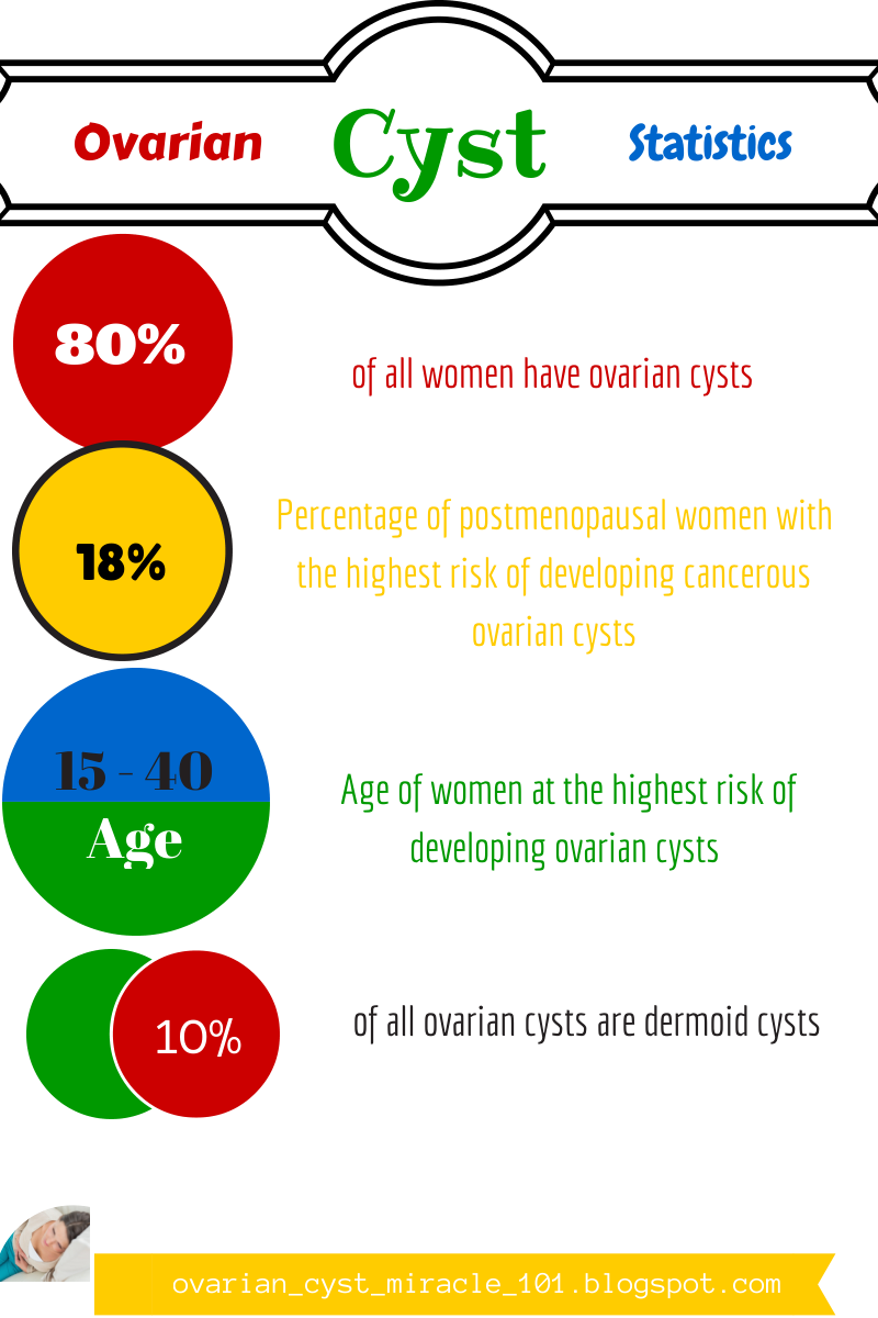 Ovarian Cyst Miracle 101: May 2014