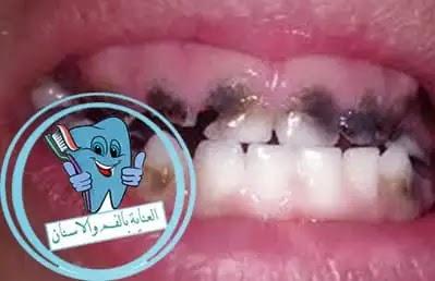 اسنان, تسوس الاسنان, الاسنان, أسنان, صور اسنان, الأسنان, اسباب تسوس الاسنان, سوسة الاسنان, تسوس الاسنان عند الاطفال, علاج التسوس, صورة اسنان, تسوس, انواع تسوس الاسنان بالصور, تسوس اسنان الاطفال, اعراض تسوس الاسنان, اسباب تسوس الاسنان رغم تنظيفها, تسوس الأسنان, علاج تسوس الضرس, تسوس الضرس, تسوس الاسنان الامامية, انواع السوس, كيف ازيل تسوس الاسنان, علاج تسوس الاسنان بدون حشو, التسوس