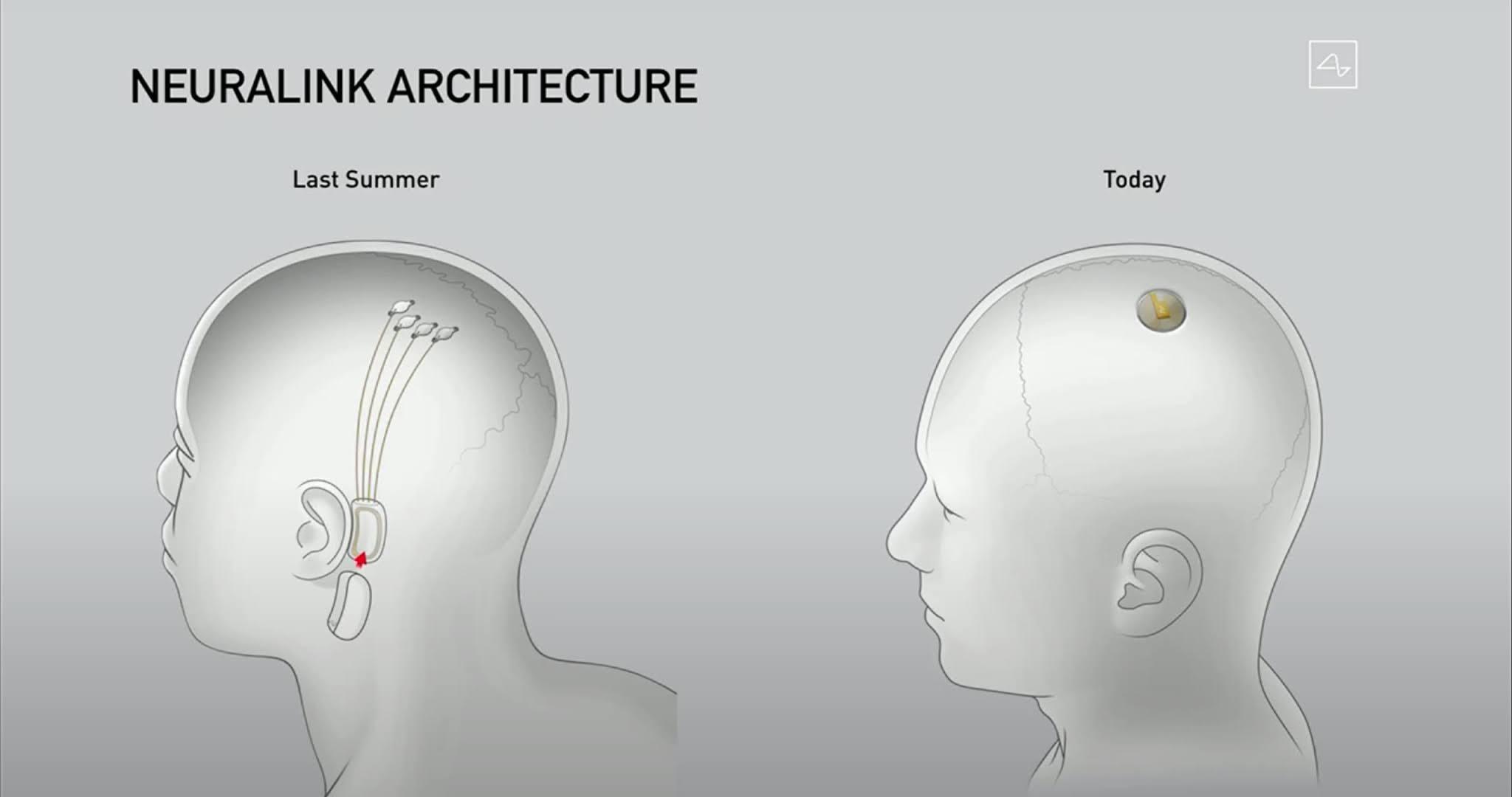 implante neuralink