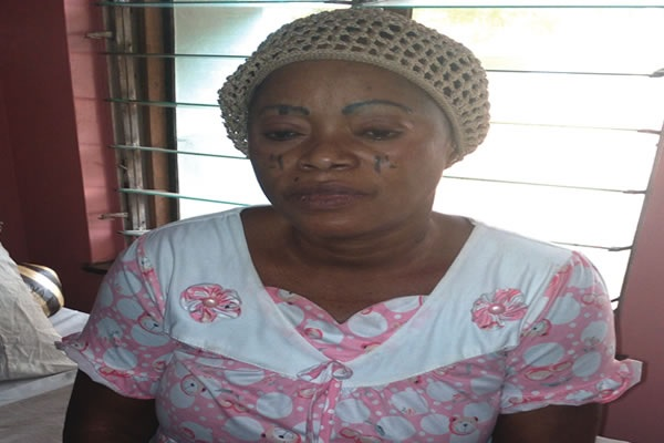 I don't want to die like this – Woman shot by SARS men, abandoned at LUTH for eight months