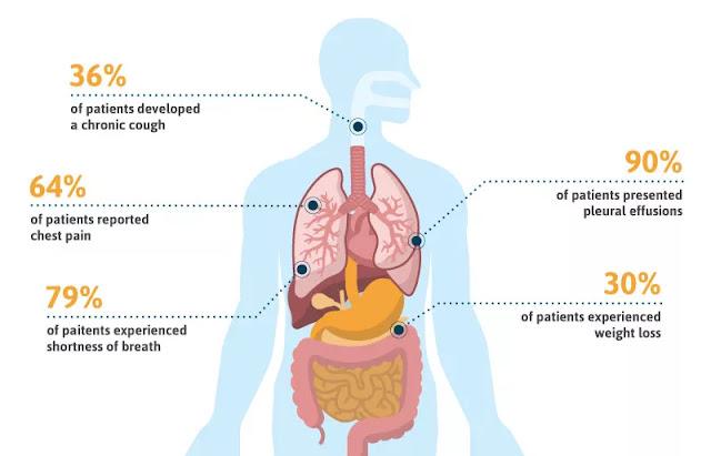 Mesothelioma Symptoms