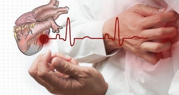 You Have 10 Seconds to Save Your Life in Case of a Heart Attack — Here's What You Should Do