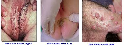 obat penyakit kelamin virus pada wanita,  obat penyakit kelamin gatal pada wanita,  obat penyakit kelamin bintik bintik pada wanita,  obat penyakit kelamin menjalar pada wanita