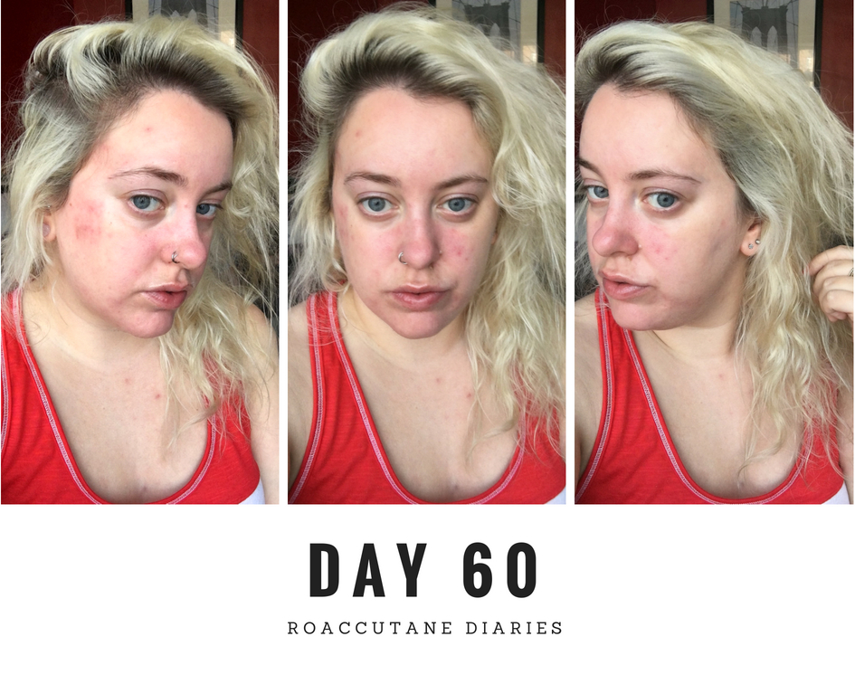 Day 60 on roaccutane