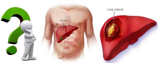 Causas y tipos de cáncer incluyendo el de hígado