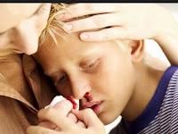Cara Mengobati nasofaring pada anak-anak