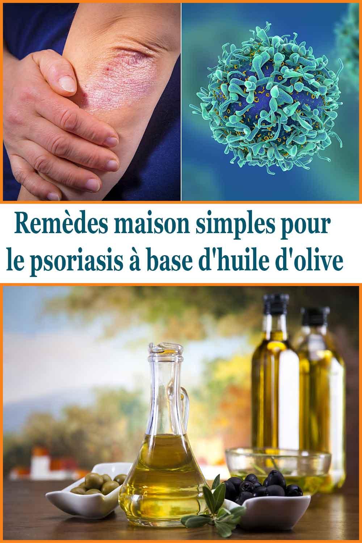 Remèdes maison simples pour le psoriasis à base d'huile d'olive