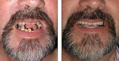 Kasus karang yang gigi buruk