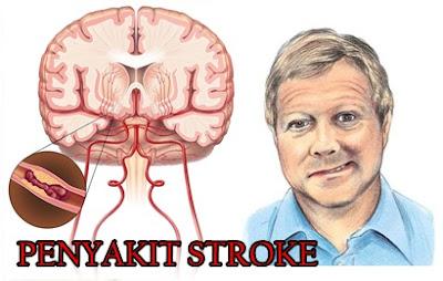 Gejala Penyakit Stroke Iskemik