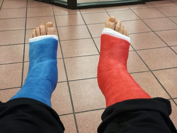 Two Broken Ankles