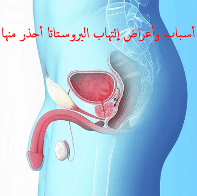 أسباب وأعراض إلتهاب البروستاتا أحذر منها
