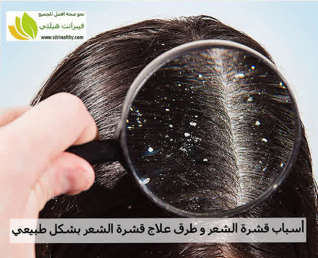 أسباب قشرة الشعر و طرق علاج قشرة الشعر بشكل طبيعي