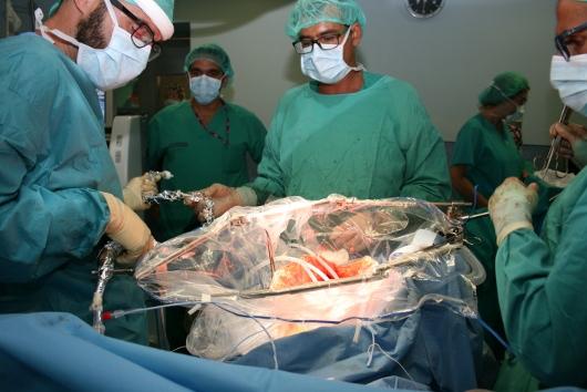 El Hospital Peset trata el cáncer avanzado con quimioterapia intraperitoneal durante la intervención quirúrgica