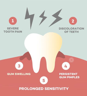 Signs and symptoms of indication of root canal treatment RCT
