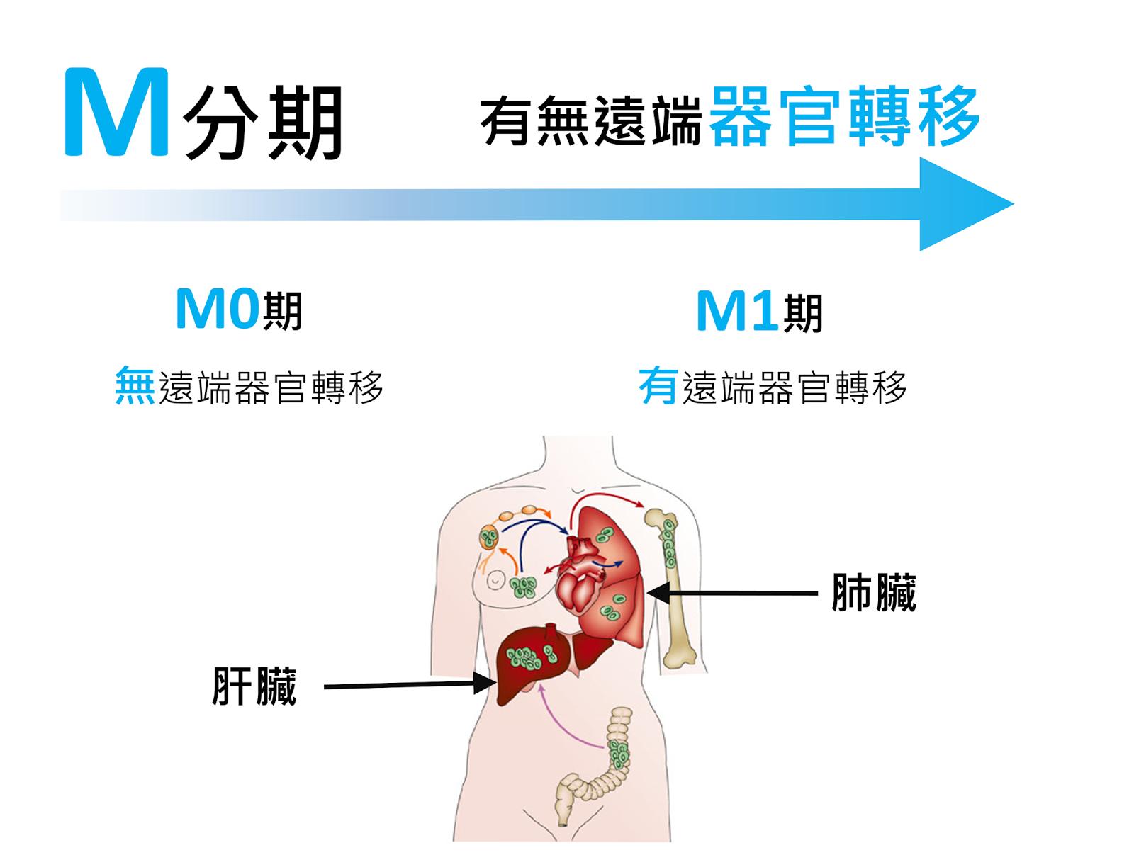 謝孟樵 醫師│Meng Chiao Hsieh, M.D. : 大腸直腸癌分期簡介