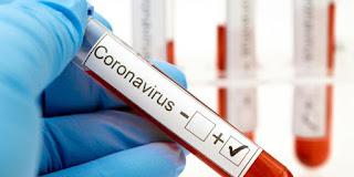 Kasus Corona Covid-19 Di Riau, Pekanbaru Terbanyak dan Paling Sedikit Kabupaten Rokan Hulu