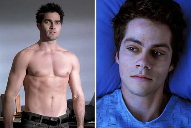 Which of Teen Wolf Character is Your Quaratnine