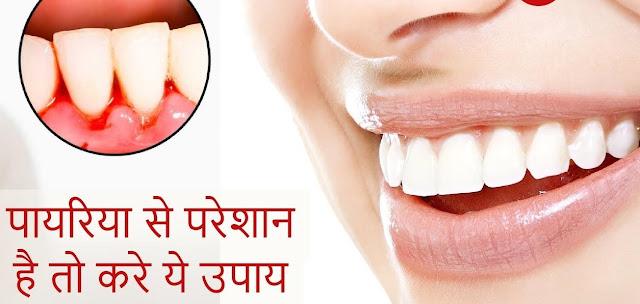 दांतों की इस खतरनाक बीमारी पायरिया को ठीक करने के ये है करे यह घरेलू उपाय