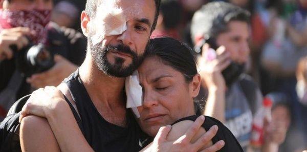 INDH de Chile señala que 241 personas sufren lesiones oculares por represión