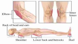 pengobatan rumah luka tempat tidur /Luka Bed