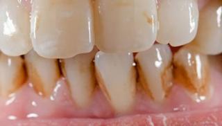cara memutihkan gigi akibat rokok