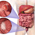 An Overview Of Colon Cancer