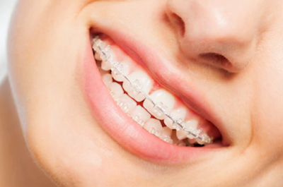http://whitefielddentist.com/resources/learn-more-about-braces