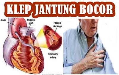 Obat Klep Jantung Bocor Yang Ampuh Mengobati Klep Jantung Bocor Tanpa Operasi
