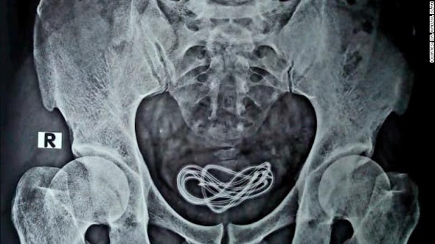 Smartphone Charger Cable Found in Man's Bladder During Surgery