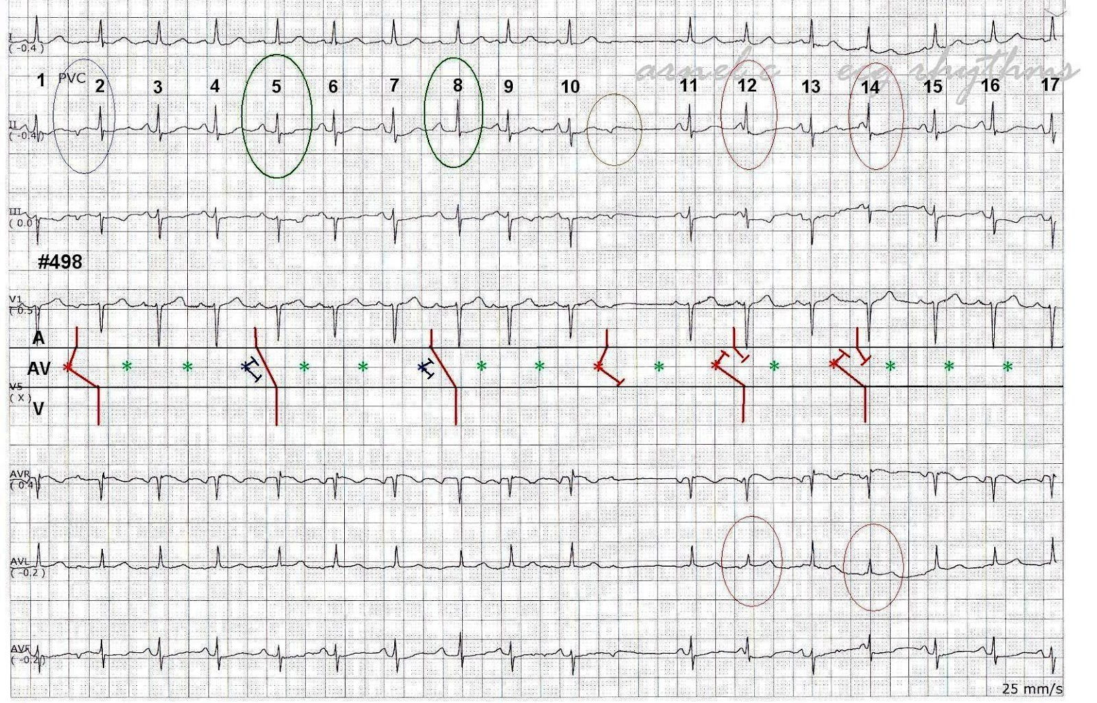 Ecg Rhythms Several Tricks Of A Pjc In One Strip