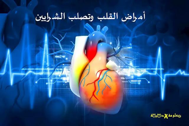 امراض القلب,أعراض مرض القلب,اعراض مرض القلب,ماهي اعراض مرض القلب
